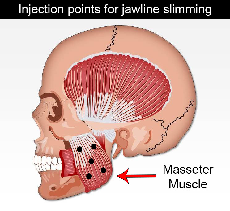 Injection points for botox jaw