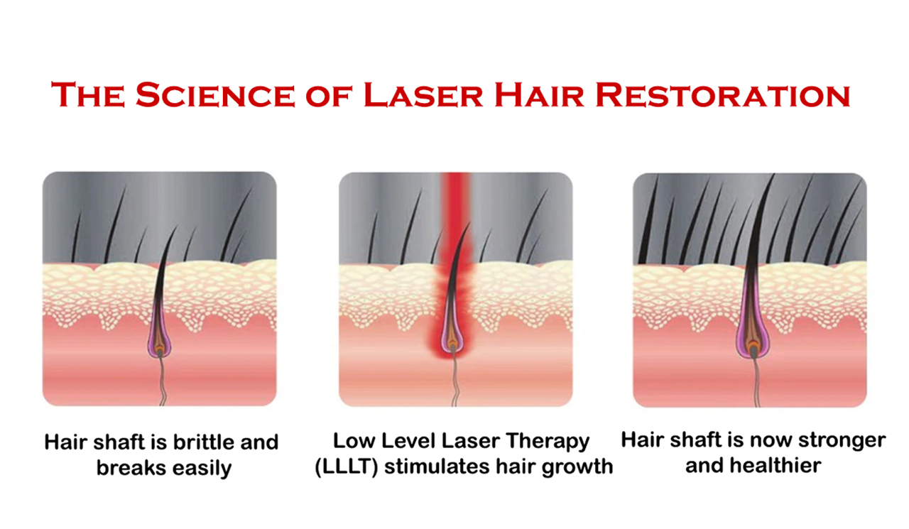Science behind laser hair loss treatment