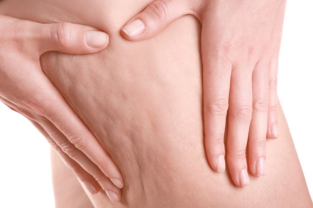 Cellulite Treatment - How does it work?