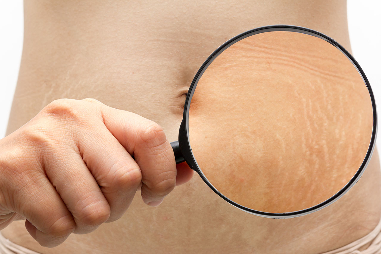 Can you remove stretch mark?