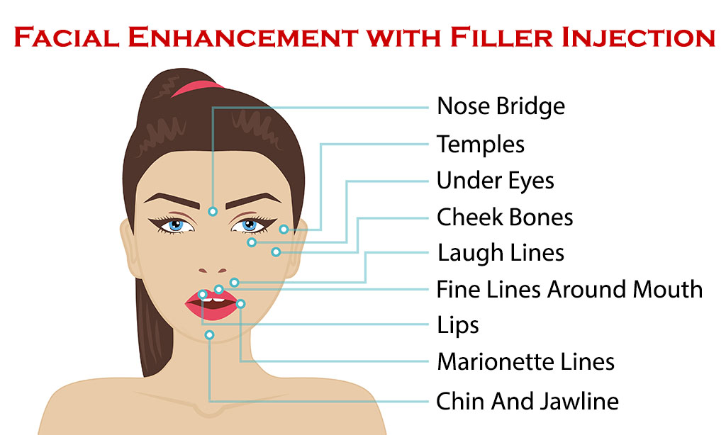 Facial Enhancement with Filler Injection