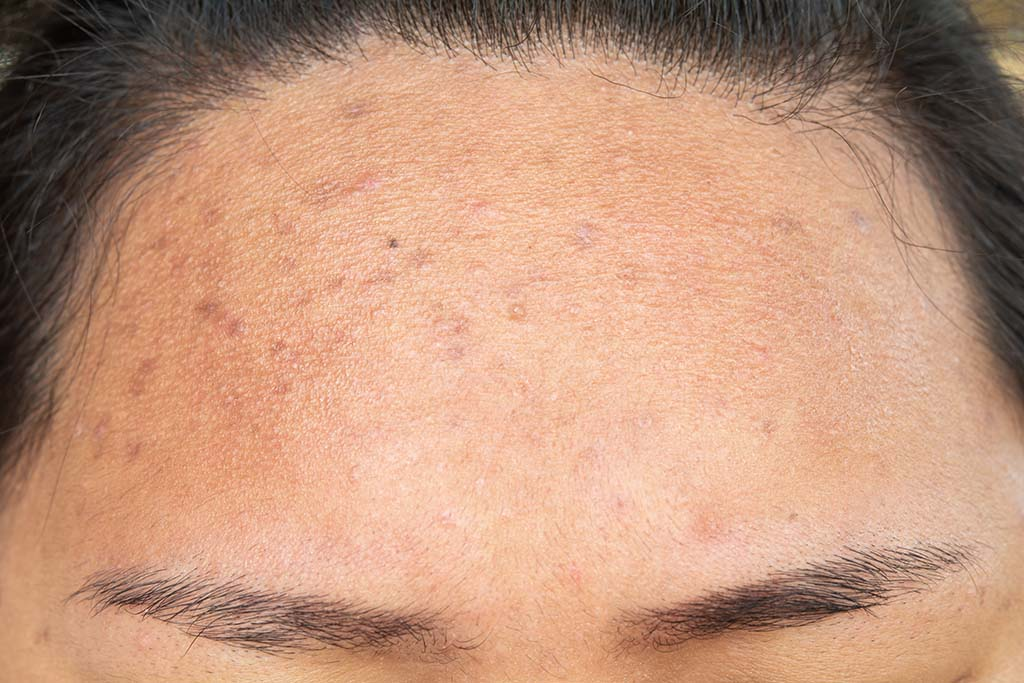 Reddish brown scars on a patient's forehead